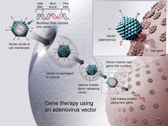 To cure disease using an adenovirus vector, a new gene intended to replace a defective one is packaged with the adenovirus genome. The genes that make the virus pathogenic are removed. The modified D N A is put inside the virus' capsid, or protein coat. The person to be cured is infected with the modified virus. Viral D N A enters the nucleus, where the modified gene can replace the defective one.