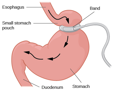 """An illustration depicts a gastric band wrapped around the top portion of a stomach. A bulging area directly above the gastric band is labeled """"Small stomach pouch."""" The area directly below the stomach is labeled """"Duodenum."""" Down-facing arrows indicate the direction in which digested food travels from the esophagus at the top, down through the stomach, and into the duodenum."""