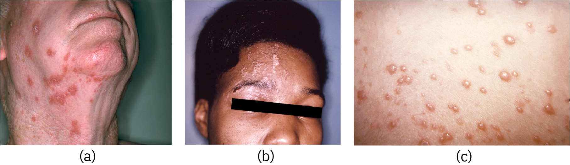a) Large red spots on an adult's neck. b) Bumps on an adult's face. c) Red bumps on skin.