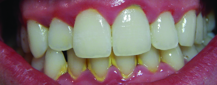 Photo of teeth with yellowing and red inflamed gums.