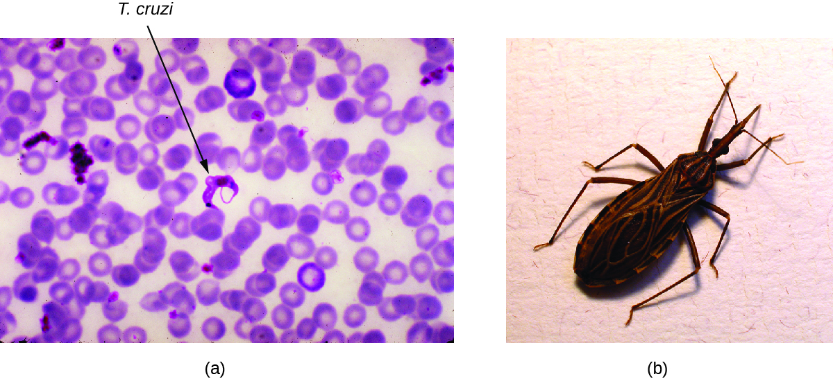 a) Micrograph of red blood cells with crescent-shaped cells outside. These parasitic cells are about the length of 2 red blood cells. B) photo of a triatomine bug.
