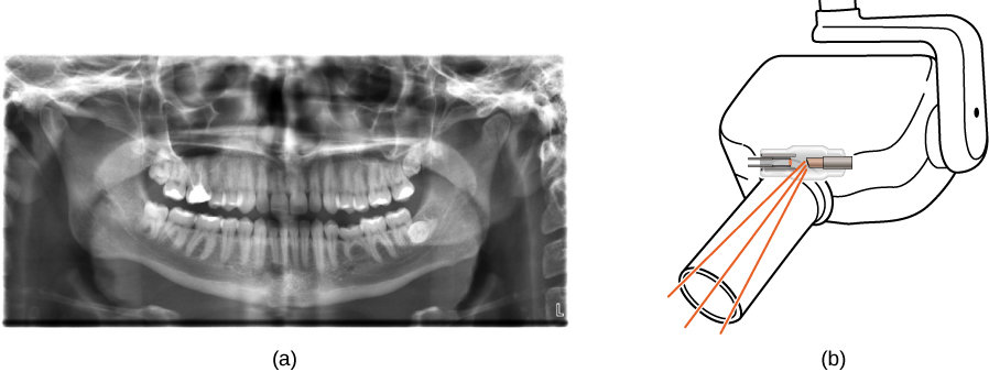 Figure (a) shows an X-ray image of front view of the jaw, especially the teeth. Figure (b) shows a drawing of an dental x ray machine.
