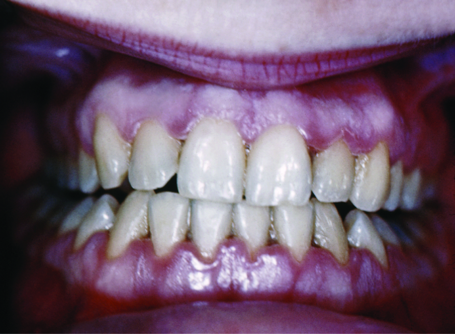 Photo of inflamed gums that have receded showing more of the teeth length.
