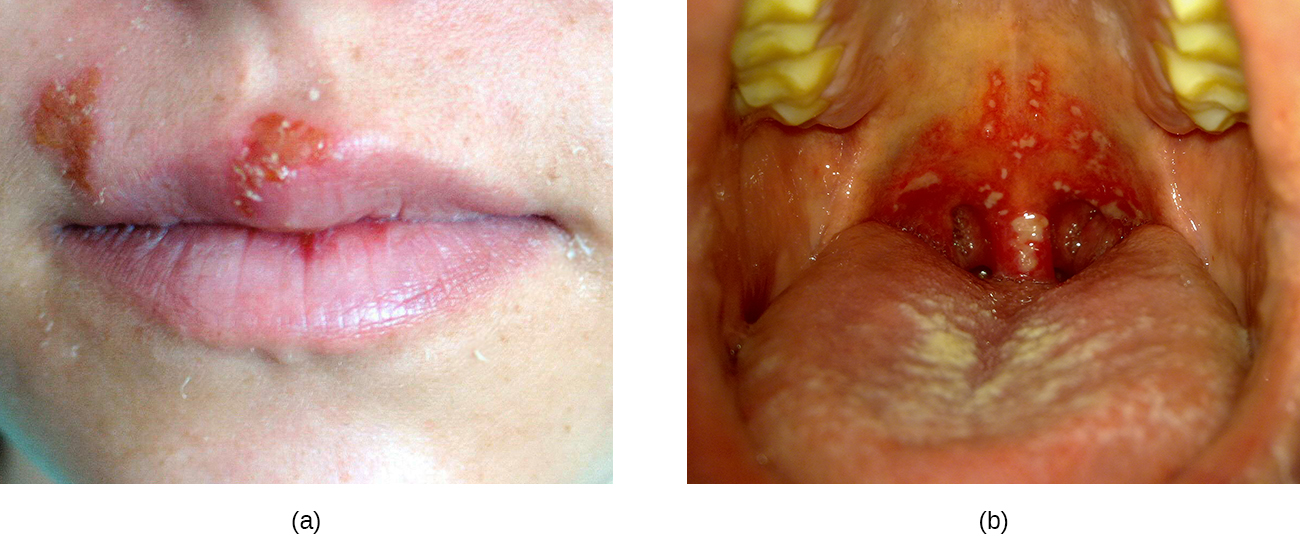 a) photo of a cold sore (red bump) on the lip. B) bumps are present in the back of a person's mouth.