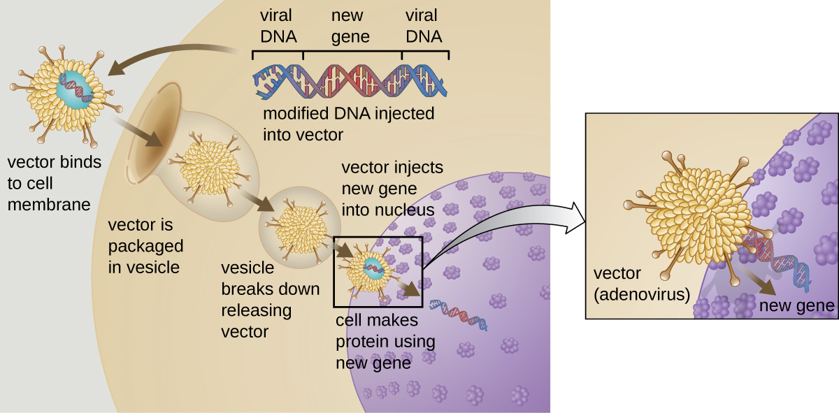 A diagram of gene therapy. A virus vector contains modified viral DNA that includes an inserted gene. First the vector binds to the cell membrane. The vector is then packaged in a vesicle. The vesicle then breaks down releasing the vector. The cell now makes protein using the new gene.