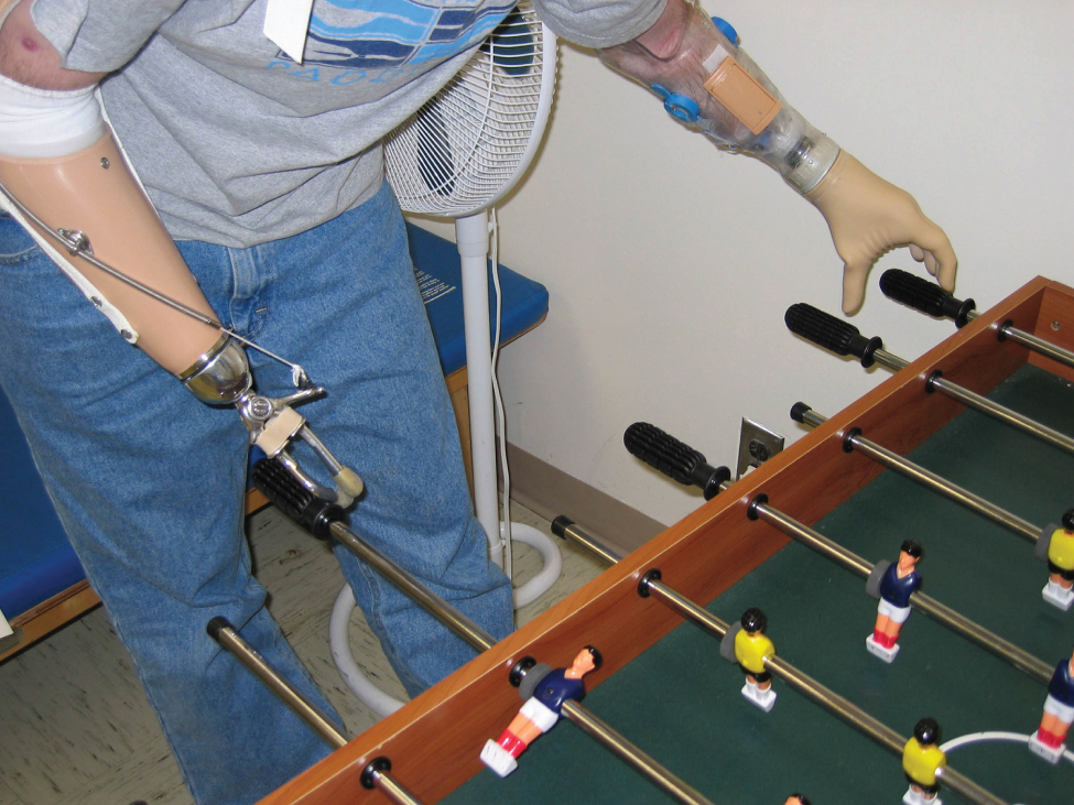 This photo shows a person playing foosball. The person has had both of their lower arms amputated. The left arm was replaced with a replica of a human hand and the right arm was replaced with a manipulator that resembles a pair of tongs.