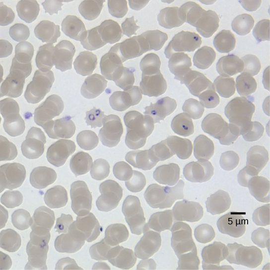 The micrograph shows round red blood cells, each about 8 microns across, infected with ring-shaped P falciparum.