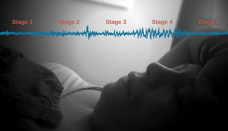A photograph shows a person sleeping.  Superimposed across the top of the picture is a line representing brainwave activity across the five stages of sleep. Above the line, from left to right, it reads stage 1, stage 2, stage 3, stage 4, and stage 5. The wave amplitude is highest in late stage 2, and near the end of stage 3 through stage 4. The wavelength I longer from late stage 2 through stage 4.