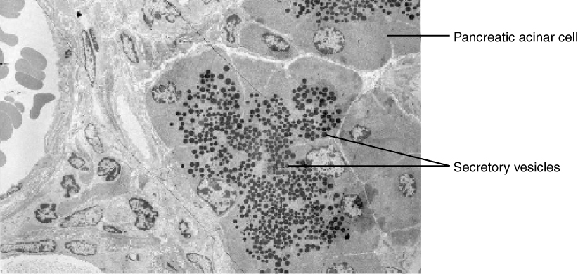 This micrograph shows the structure of a pancreatic acinar cell and the location of secretory vesicles.