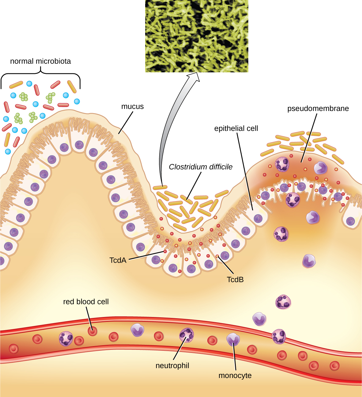 A diagram showing the lining of the stomach. At the very bottom is a blood vessel with red blood cells, neutrophils, and monocytes. At the top is a wavy layer of epithelial cells covered in mucous. A variety of bacteria (different shapes and colors to indicate different species) are seen on the mucus. In one region is a cluster of rod shaped cells labeled Clostridium difficile that release small dots labeled TcdA and TcdB. These create a pseudomembrane that is a swelling above destroyed epithelial cells. In response neutrophils and monocytes released.