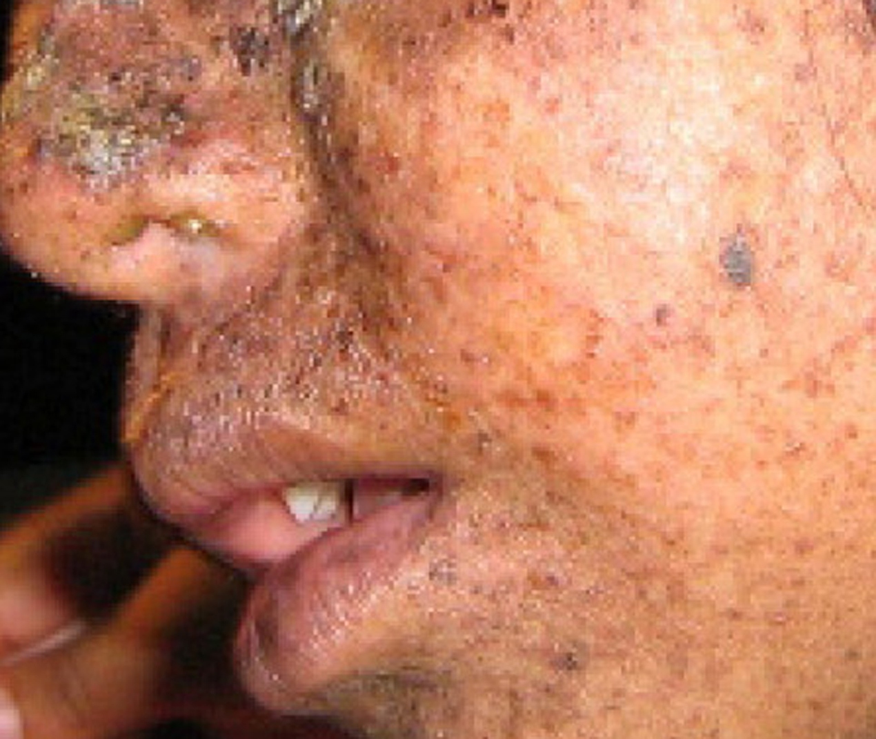 Photo shows a person with mottled skin lesions that result from xermoderma pigmentosa.