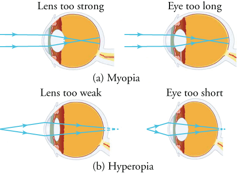 View (a) shows schematic cross-sections of the eye indicative of myopia. View (b) show schematic cross-sections of the eye indicative of hyperopia.