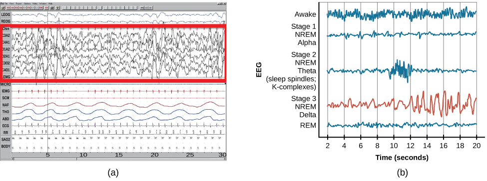 Polysonograph a shows the pattern of delta waves, which are low frequency and high amplitude. Delta waves are found mostly in stage 3 of sleep. Chart b shows brainwaves at various stages of sleep, with stage 3 highlighted.