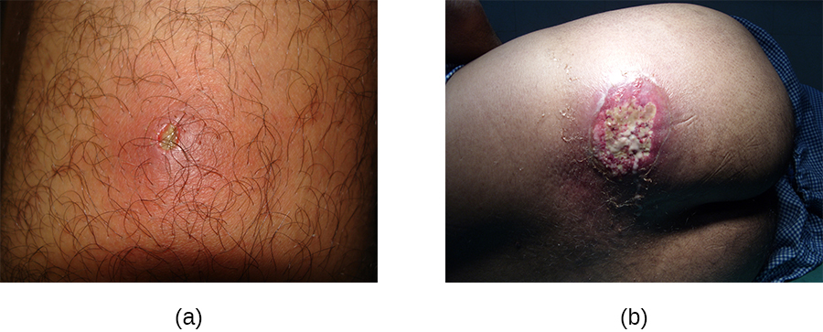 a) a photo of a small inflamed region with a white center. b) A large lesion with white and red.