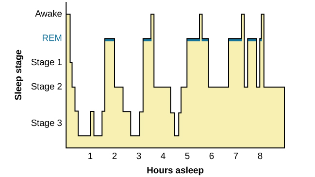 This is a hypnogram showing the transitions of the sleep cycle during a typical eight hour period of sleep. During the first hour, the person goes through stages 1 and 2 and ends at 3. In the second hour, sleep oscillates in stage 3 before attaining a 30-minute period of REM sleep. The third hour follows the same pattern as the second, but ends with a brief awake period. The fourth hour follows a similar pattern as the third, with a slightly longer REM stage. In the fifth hour, stage 3 is no longer reached. The sleep stages are fluctuating from 2, to 1, to REM, to awake, and then they repeat with shortening intervals until the end of the eighth hour when the person awakens.