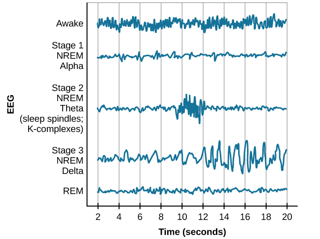 """A graph has a y-axis labeled """"EEG"""" and an x-axis labeled """"time (seconds.) Plotted along the y-axis and moving upward are the stages of sleep. First is REM, followed by Stage 3 NREM Delta, Stage 2 NREM Theta (sleep spindles; K-complexes), Stage 1 NREM Alpha, and Awake. Charted on the x axis is Time in seconds from 2–20 in 2 second intervals. Each sleep stage has associated wavelengths of varying amplitude and frequency. Relative to the others, """"awake"""" has a very close wavelength and a medium amplitude. Stage 1 is characterized by a generally uniform wavelength and a relatively low amplitude which doubles and quickly reverts to normal every 2 seconds. Stage 2 is comprised of a similar wavelength as stage 1. It introduces the K-complex from seconds 10 through 12 which is a short burst of doubled or tripled amplitude and decreased wavelength. Stage 3 has a more uniform wave with gradually increasing amplitude. Finally, REM sleep looks much like stage 2 without the K-complex."""