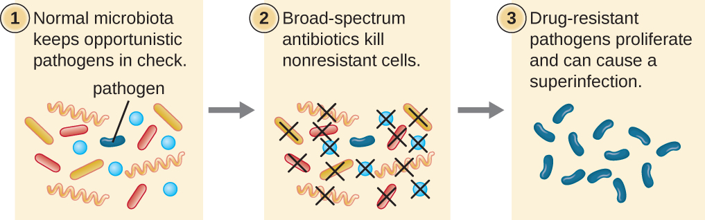 Diagram of process of superinfection. 1: Normal microbiota keeps opportunistic pathogens in check. Image shows many different bacteria, only 1 of which is labeled pathogen. 2: Broad-spectrum antibiotics kill nonresistant cells. Image shows all cells but pathogen being killed. 3: Drug-resistant pathogens proliferate and can cause a superinfection. Image shows many of the pathogen.