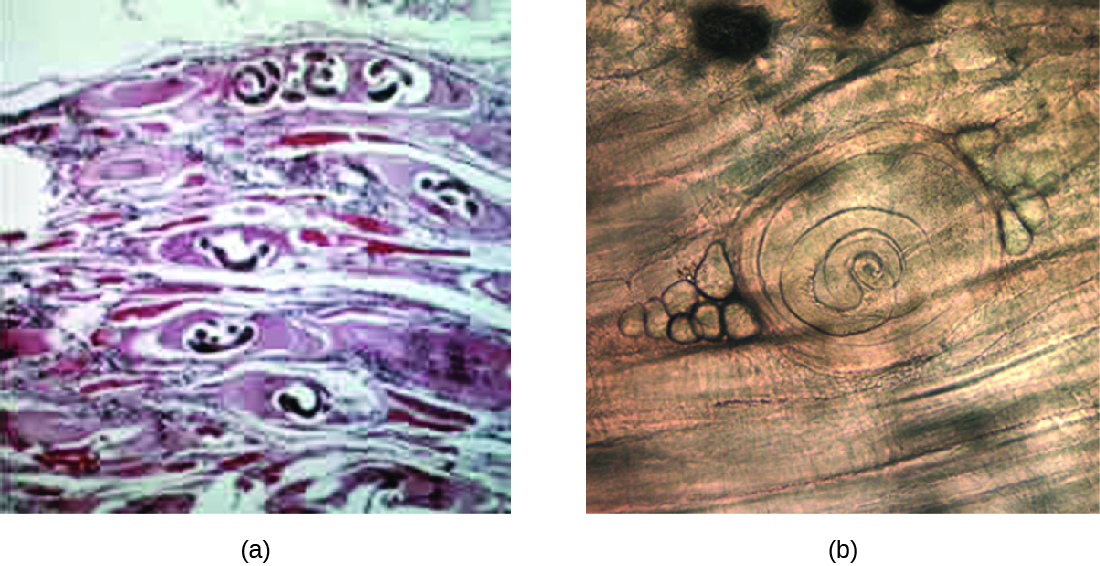 a) a micrograph of worms in bubbles within muscle tissue. B) a micrograph of a coiled worm on muscle.