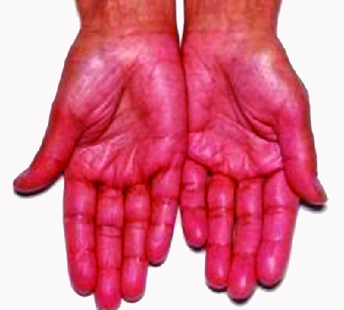Two hands, palm up are shown. They appear to be redder than is normal.
