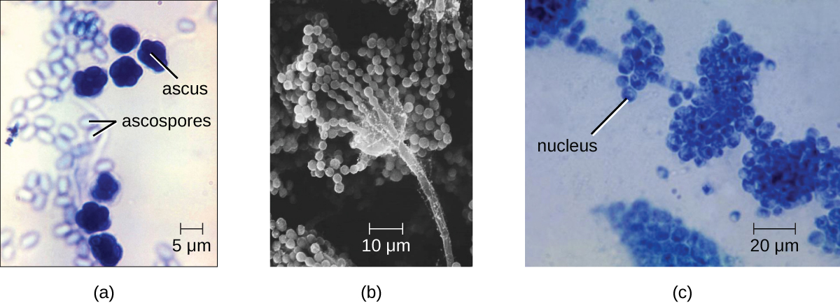 a) a micrograph of a large oval (10 µm) labeled ascus and smaller ovals (5 µm) labeled ascospores. B) a micrograph of a long stalk with strands of spheres emanating from a sphere on the tip. The spheres are about 2 µm in diameter. C) A long strand with clusters of spheres. A small dot in each sphere is labeled nucleus.