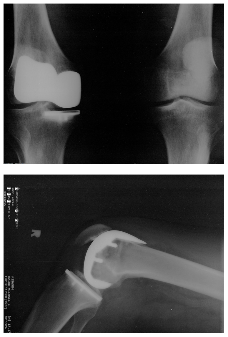 Two X-x rays of an artificial knee replacement are shown.