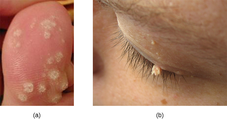 a) photo of warts on a toe. B) photo of wart on an eye.