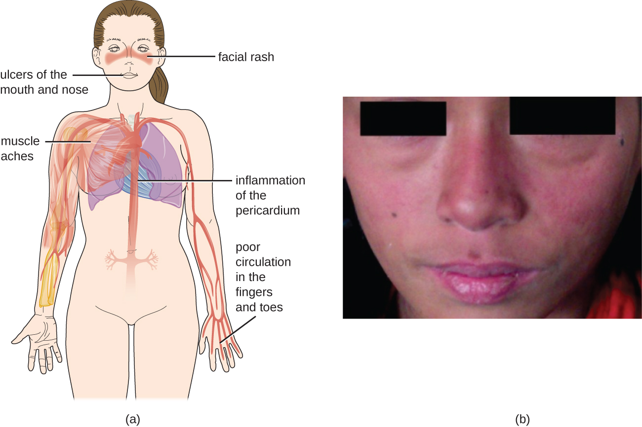 a) Diagram of symptoms include: a rash on the phase, ulcers of the nose and mouth, muscle aches, inflammation of the pericardium (heart region), poor circulation in the fingers and toes. B) photo of a butterfly rash on the face.