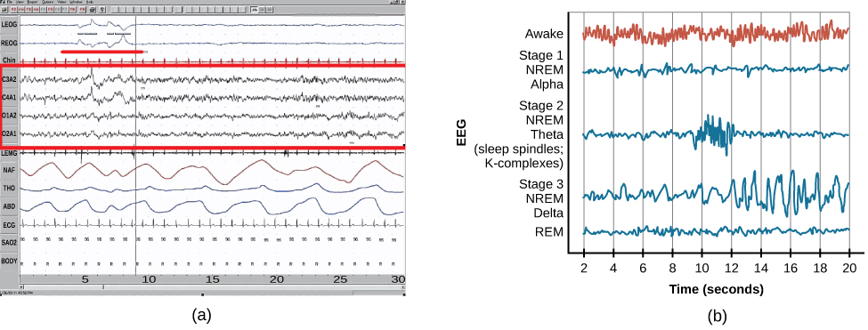 """Chart A is a polysonograph with the period of rapid eye movement (REM) highlighted. Chart b shows brainwaves at various stages of sleep, with the """"awake"""" stage highlighted to show its similarity to the wave pattern of """"REM"""" in chart A."""