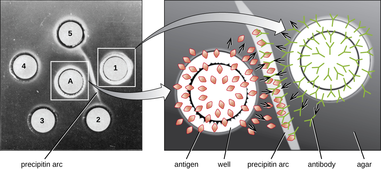 A gel with a central circle labeled A and 5 outer circles numbered 1-5. Between A and 1 is a white band labeled precipitin band. This zone is magnified and a diagram shows that circle A contains antigens in a well. Circle 1 contains antibodies in a well. The antigens and antibodies diffuses outward and meet in the region of the precipitin band. Here they bind together.