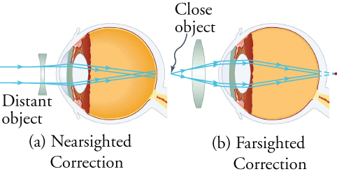 View (a) shows a schematic cross-section of the eye and a concave lens that corrects for nearsightedness. View (b) shows a schematic cross-section of the eye and a convex lens that corrects for farsightedness.