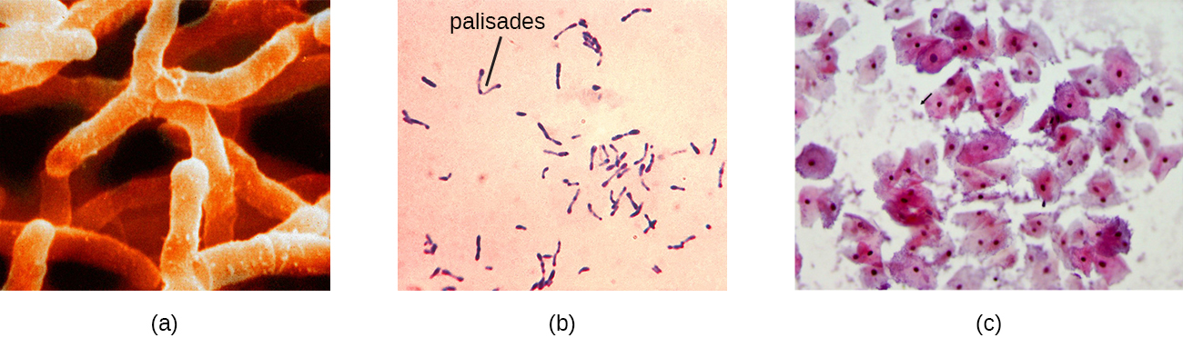 a) A micrograph of branched cells. B) A micrograph of cells arranged in a V-shape – these are labeled palisades. C) A micrograph of corn-flake shaped cells with a nucleus. Smaller cells outside of these are identified with an arrow.
