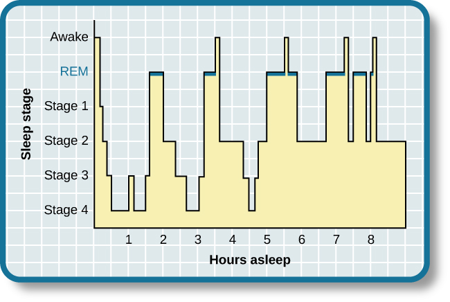 This is a hypnogram showing the transitions of the sleep cycle during a typical eight hour period of sleep. During the first hour, the person goes through stages 1,2,3 and ends at 4. In the second hour, sleep oscillates between 3 and 4 before attaining a 30-minute period of REM sleep. The third hour follows the same pattern as the second, but ends with a brief awake period. The fourth hour follows a similar pattern as the third, with a slightly longer REM stage. In the fifth hour, stages 3 and 4 are no longer reached. The sleep stages are fluctuating from 2, to 1, to REM, to awake, and then they repeat with shortening intervals until the end of the eighth hour when the person awakens.