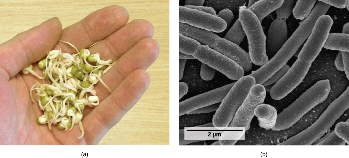 Part a shows round, green seeds with stems sprouting from them in the palm of a person's hand. Part b shows a scanning electron micrograph of rod-shaped bacteria.