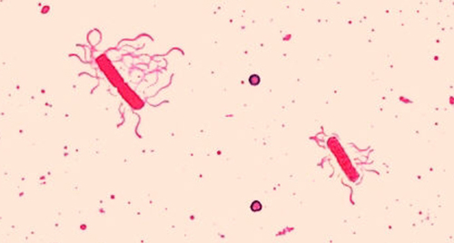 Figure 2.39 A flagella stain of Bacillus cereus,