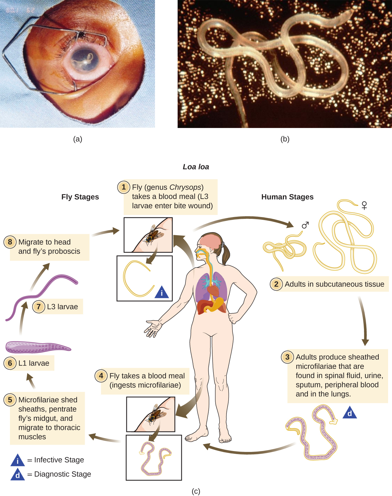 The first part of the image is a photograph of an eye with a visible worm inside of it and a photo of a close-up of the worm. The second image is a illustrated chart showing the Life cycle of Lao lao. Fly (genus Chrysops) takes a blood meal (L3 larvae enter the bite wound). Adults grow into long worms in the subcutaneous tissue. Adults produce sheathed microfilariae that are found in spinal fluid, urine, sputum, peripheral blood, and in the lungs. Another fly take a blood meal and ingests microfilariae. The microfilariae shed sheaths, penetrate fly's midgut, and migrate to thoracic muscles. The L1 larvae forms and becomes an L3 larvae which migrates to the head and fly's proboscis. The fly is now ready to infect another person