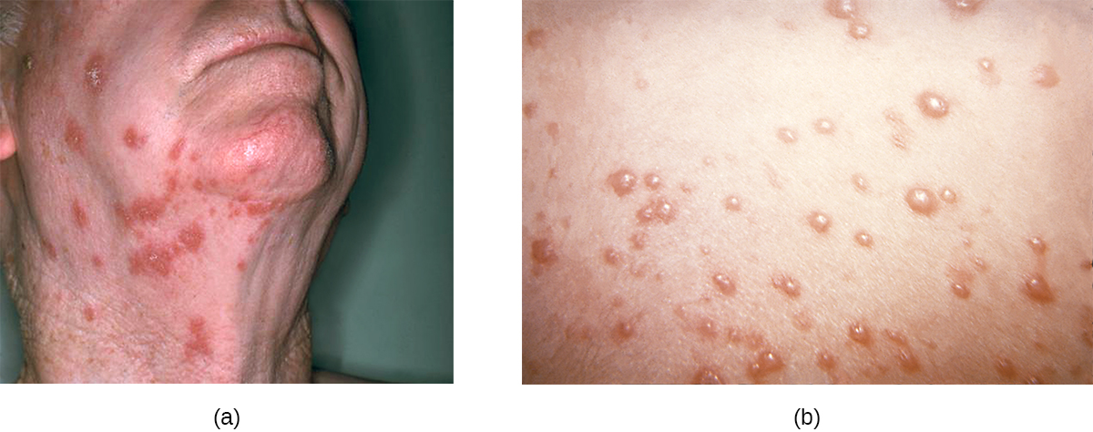 a) Large red spots on an adult's neck. B) Red bumps on skin.