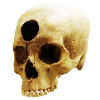 A skull has a large hole bored through the forehead.