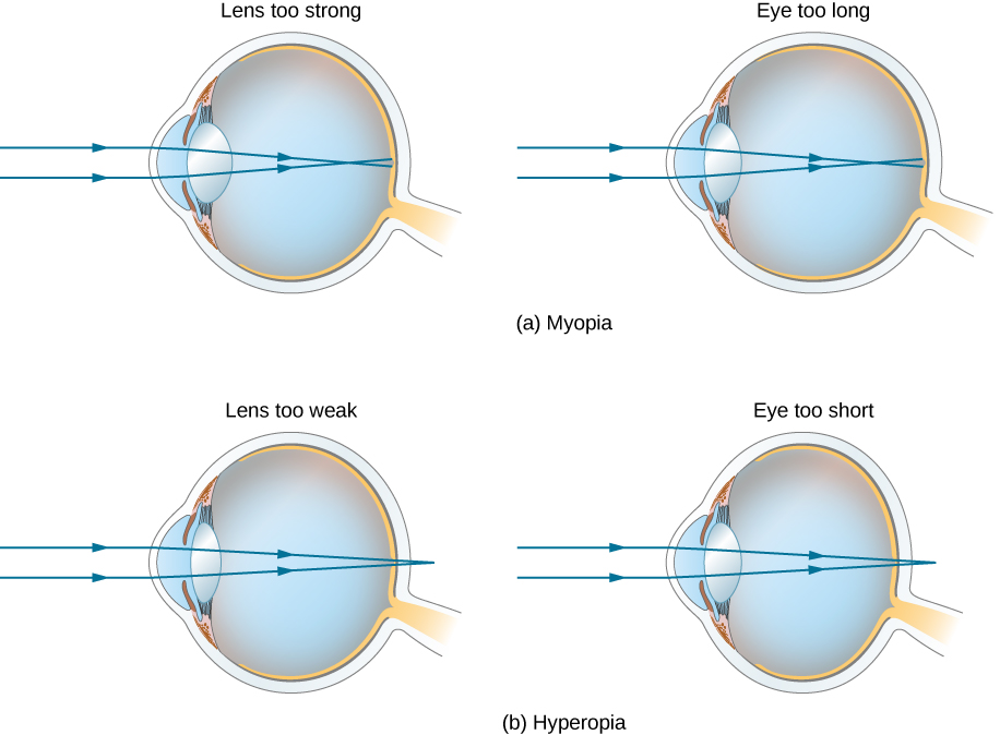 "Figure a shows two eyes labeled ""lens too strong"" and ""eye too long"". In both cases, parallel rays striking the cornea converge in front of the retina. Figure b shows two eyes labeled ""lens too weak"" and ""eye too short"". In both cases, parallel rays striking the cornea converge behind the retina."