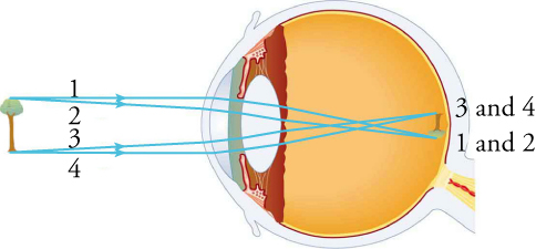 This schematic shows a cross-section of an eyeball. An upright tree is to the left of the eye. Rays 1 and 2 come from the top of the tree; rays 3 and 4 originate from the bottom of the tree. The rays enter the eyeball, pass through the components of the eye, and produce an image of an inverted tree.