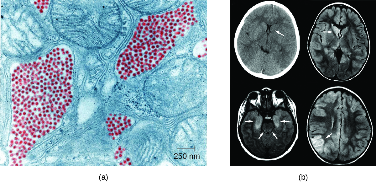 a) electron micrograph showing small red dots next to larger cellular structures. B) brain scans with arrows pointing to dark regions in the brain.