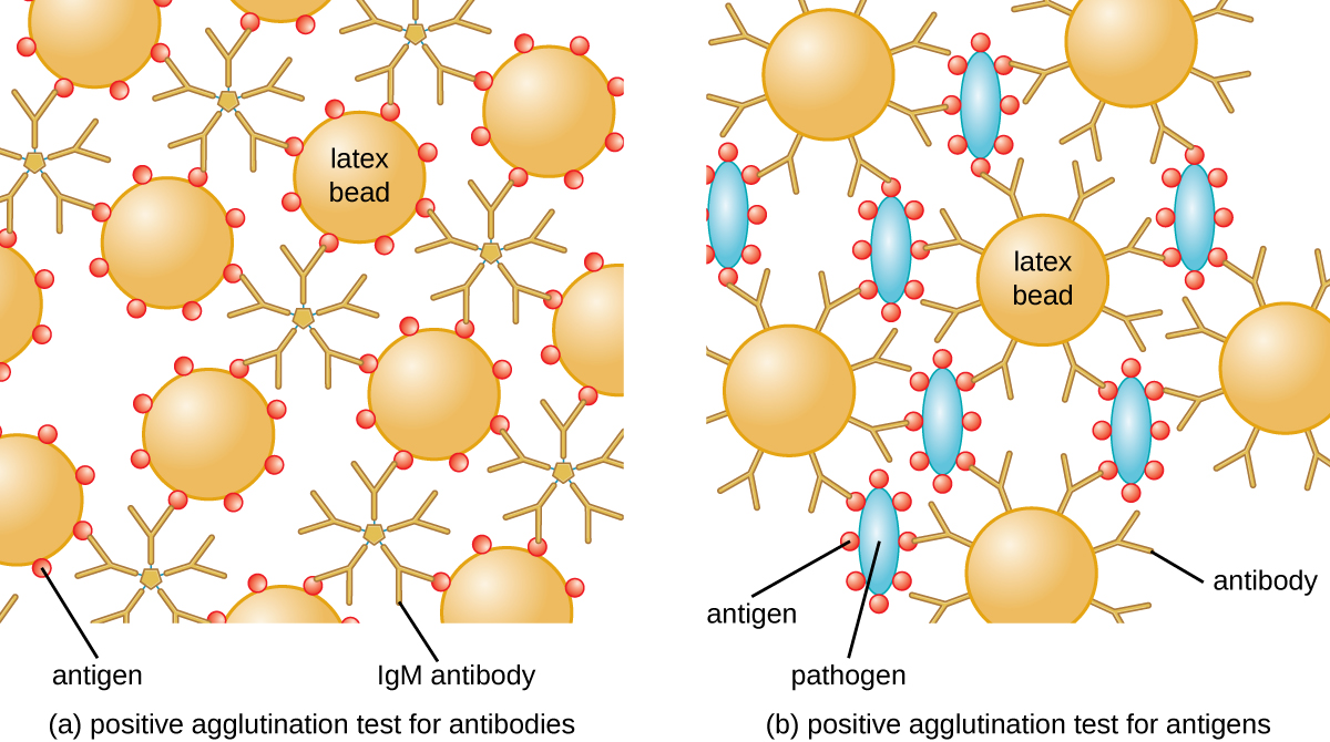 (a) A diagram of positive agglutination test for antibodies. Large circles (latex beads) have smaller circles (antigens) on their surface. IgM antibodies (6 Y shapes attached at their base) are bound to the antigens. B) A diagram of positive agglutination test for antigens. The latex beads have antigens on them. Smaller blue ovals (pathogens) have circles (antigens) on their surface. The antigens bind to the antibodies.