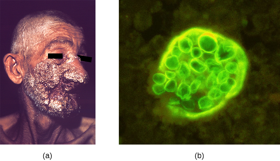 a) Large, dark lesions on a face. B) A microrgraph of spheres in a larger sphere.