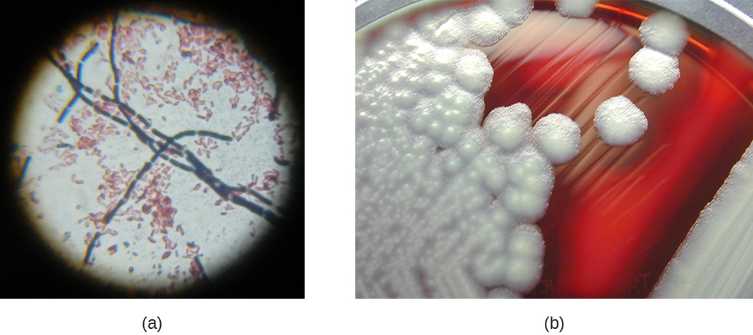 a) A micrograph of rod shaped cells in a chain. B) A photograph of colonies on agar. The agar is red and the colonies are white and fluffy looking.