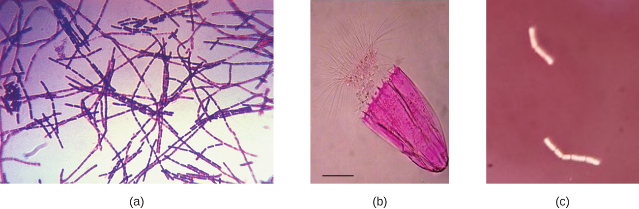 Micrograph a shows chains of purple rectangles on a clear background. Micrograph B shows a purple cell on a clear background; the cell looks like a jelly with an umbrella top and long projections. Micrograph C shows clear chains of rectangles on a dark background.