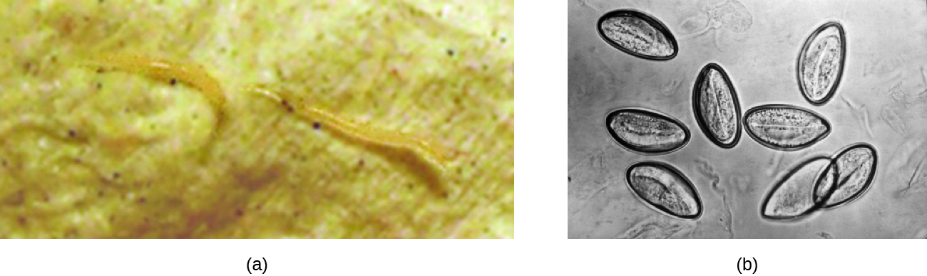 a) photo of a small clear worm. B) micrograph of cells shaped like pointed ovals.