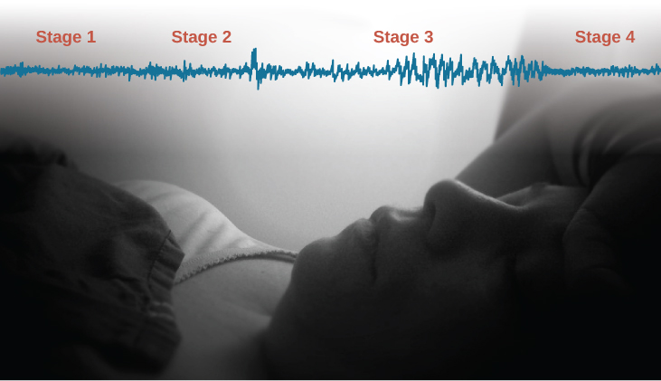 A photograph shows a person sleeping. Superimposed across the top of the picture is a line representing brainwave activity across the four stages of sleep. Above the line, from left to right, it reads stage 1, stage 2, stage 3, and stage 4. The wave amplitude is highest in late stage 2, and in the middle of stage 3 until stage 4. The wavelength is longer from late stage 2 through stage 3.