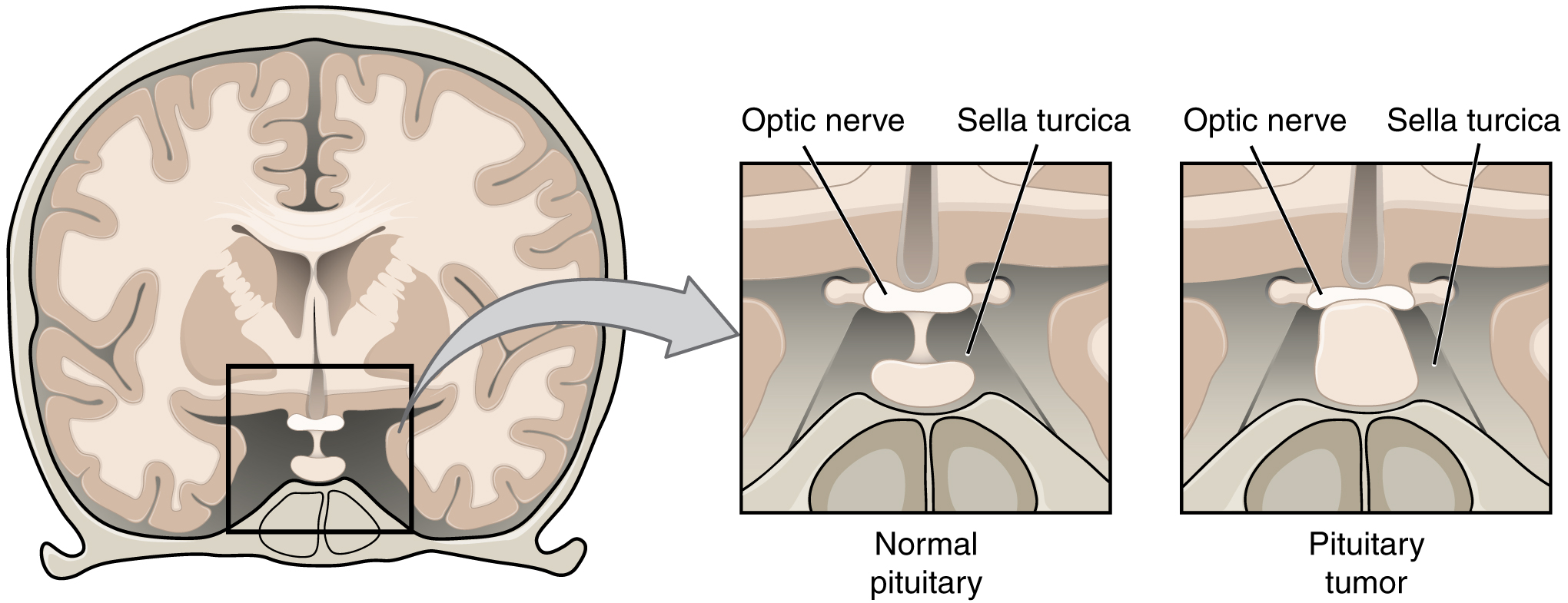 The left panel of this figure shows the top view of the brain. The center panel shows the magnified view of a normal pituitary, and the right panel shows a pituitary tumor.