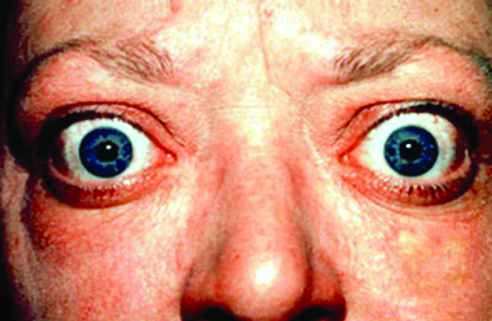 Photo of a person with large bulging eyes.