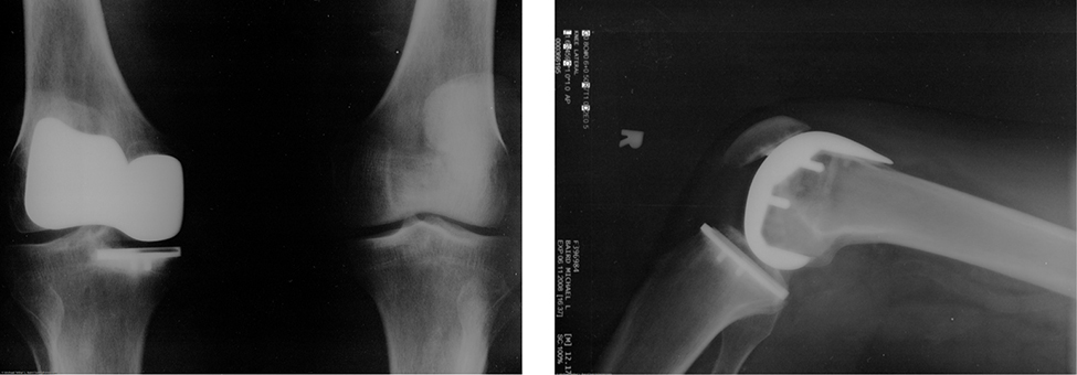Two X ray photos of artificial knee replacements.
