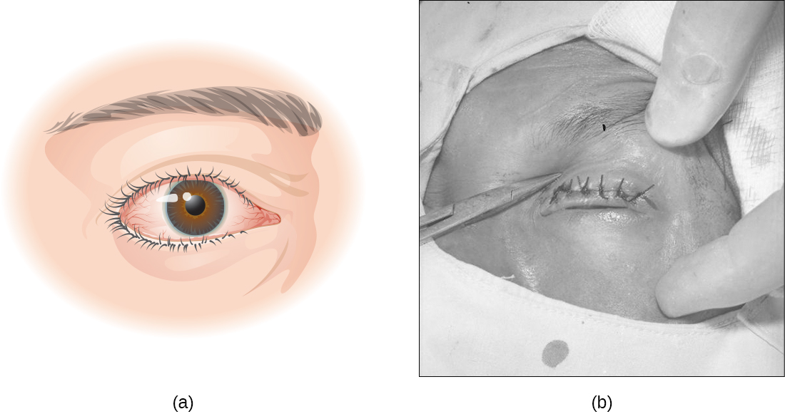 a) eye with turned in eyelids. B) photo of eye surgery.